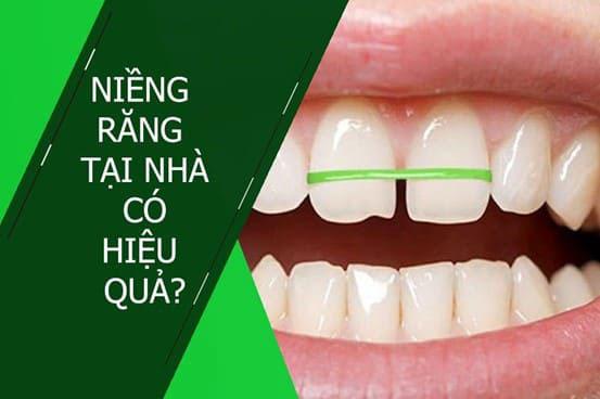 niềng răng tại nhà