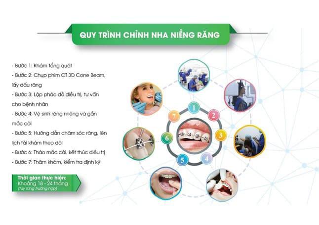 Quy trình chỉnh nha niềng răng