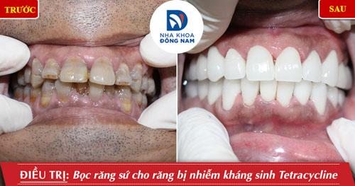 răng bọc sứ