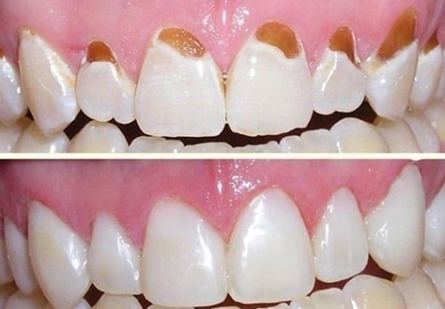 trám mòn cổ răng