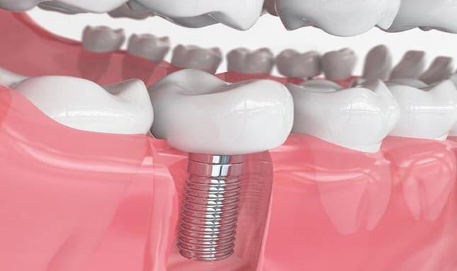 Trồng răng Implant là giải pháp tối ưu khi bị mất răng số 7