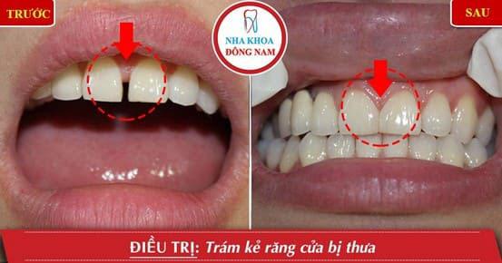 2 răng cửa bị thưa