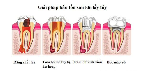 bị áp xe răng