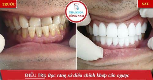Bọc răng sứ điều chỉnh khớp cắn ngược