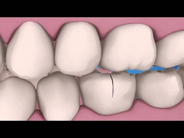 bọc răng sứ hôi miệng