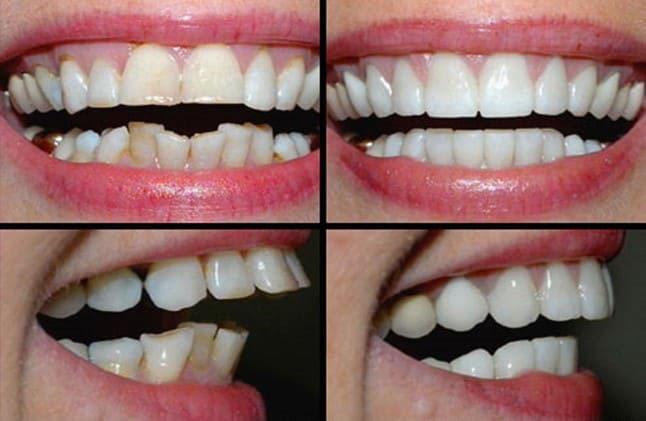 bọc răng sứ sau khi lấy tủy