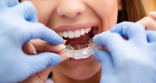 cách chăm sóc răng sau khi bọc răng sứ