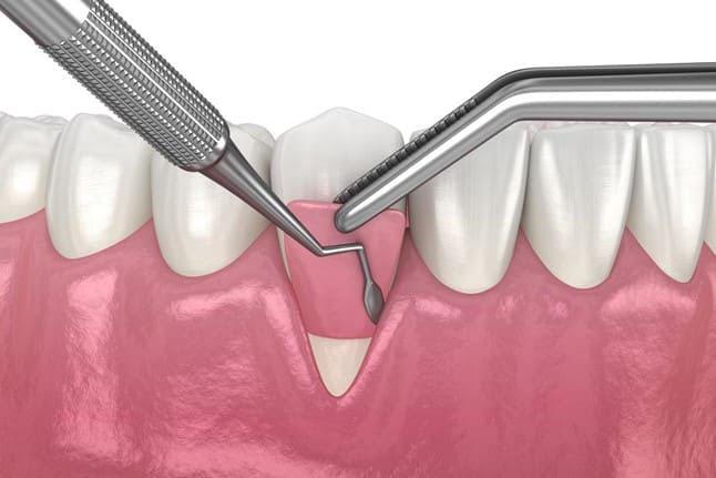 cách dùng chỉ nha khoa oral b