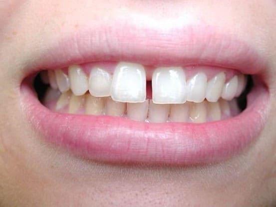 cách khắc phục răng cửa thưa