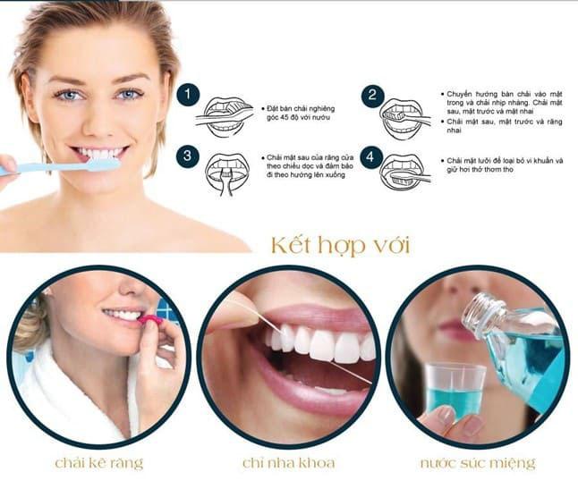 Cách vệ sinh răng sau khi bọc sứ