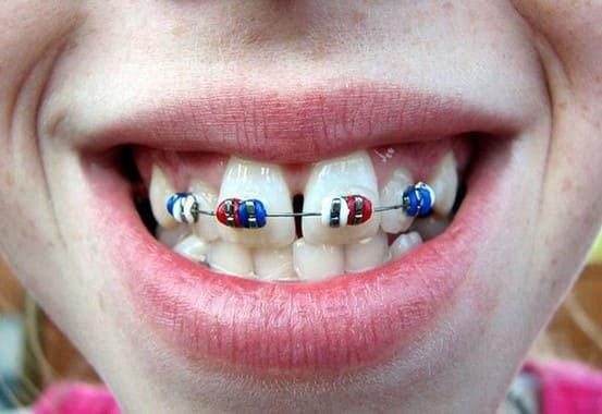 chỉnh răng cửa to