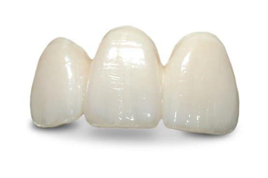dán răng sứ emax