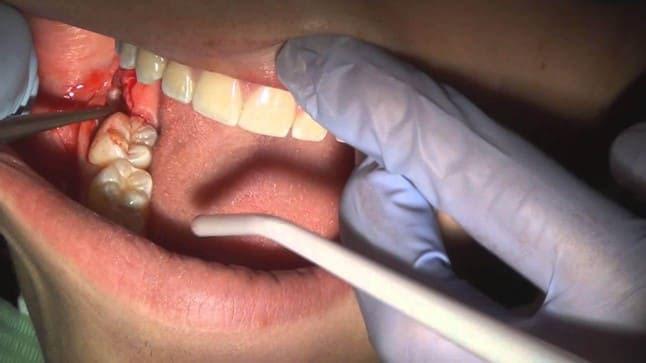 đau răng bị sưng mặt