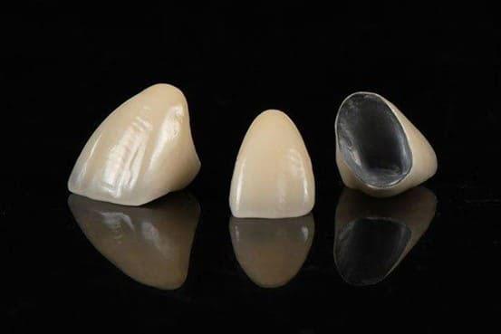 giá răng sứ thường