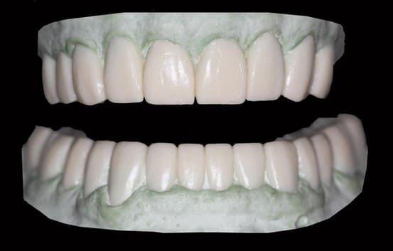 giá răng sứ zirconia