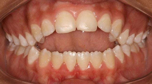 khớp cắn răng chuẩn