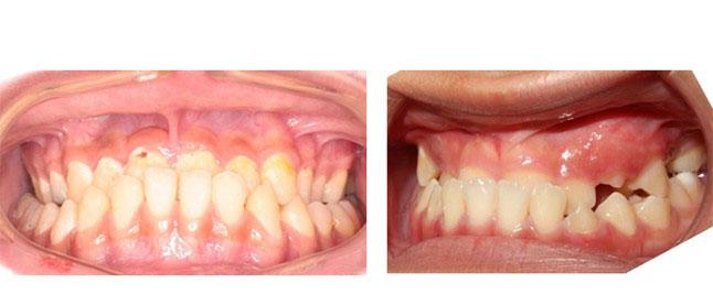 khớp cắn răng hàm chuẩn