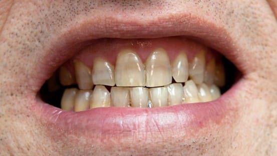 mão răng toàn sứ emax