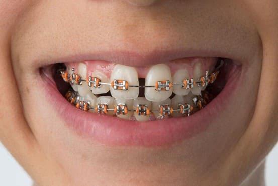 nẹp răng