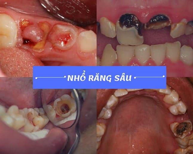 nhổ răng không đau