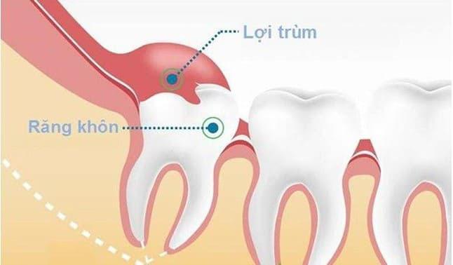 nướu răng bị sưng