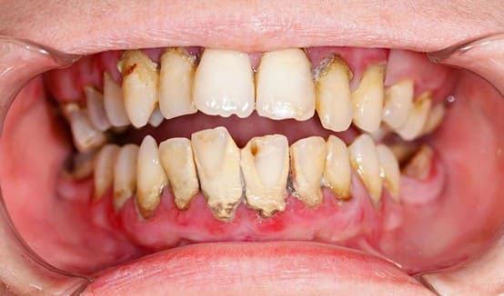 răng bị lung lay