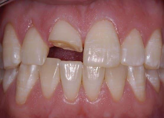 Răng bị mẻ lớn làm cấu trúc răng bị thay đổi cũng gây ra tình trạng ê buốt