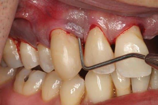 răng cửa bị hở