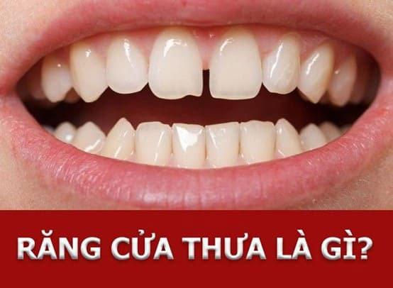 răng cửa bị thưa phải làm sao