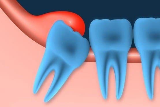 răng khôn có mấy cái