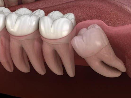răng khôn là răng gì