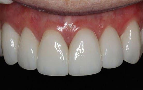 giá răng sứ không kim loại
