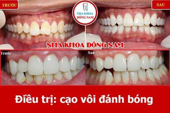 răng lung lay làm sao để chắc lại