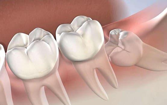 răng số 8 là răng nào