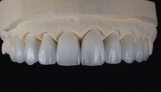 răng sứ emax có mấy loại
