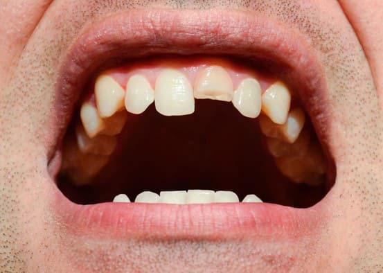 răng sứ titan giá bao nhiêu