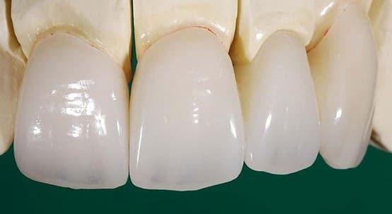 răng sứ veneer emax
