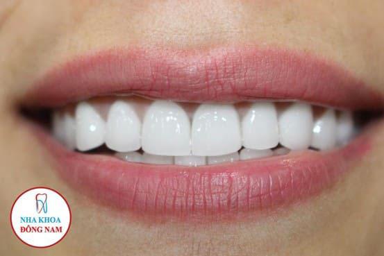 răng sứ zirconia gia bao nhieu