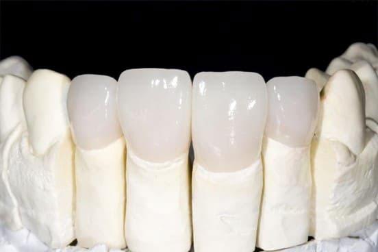 răng sứ zirconia là gì