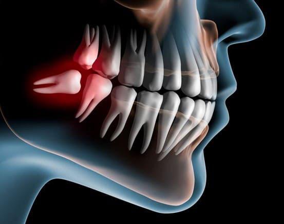 Sưng nướu răng trong cùng có thể là biểu hiện của bệnh mọc răng khôn