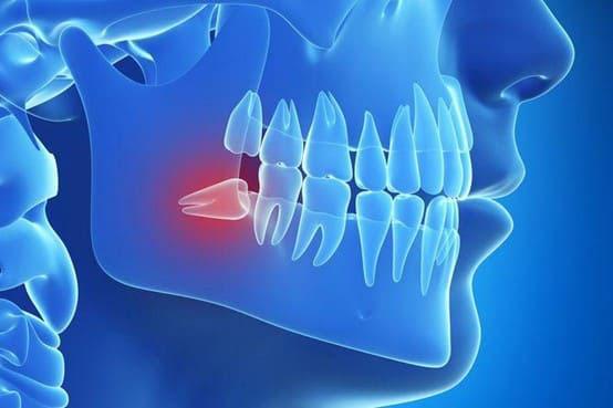 tác hại của răng số 8 mọc lệch