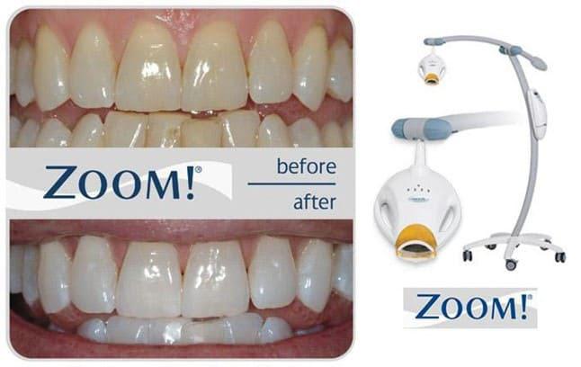 Tẩy trắng răng hiệu quả công nghệ đèn Zoom hiện