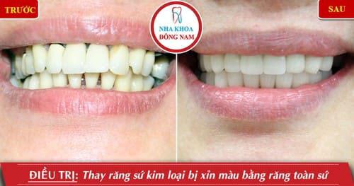 Thay thế răng sứ kim loại bằng răng toàn sứ Zirconia