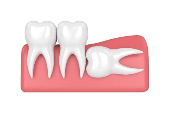 tư vấn nhổ răng số 8 mọc lệch