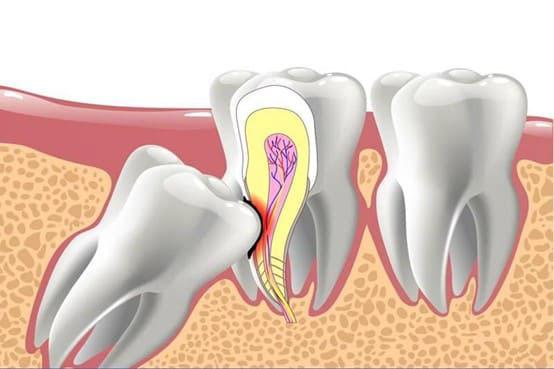 xử lý răng số 8 mọc lệch