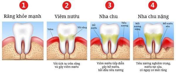 cách chữa viêm nha chu
