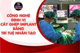 công nghệ cấy răng implant trí tuệ nhân tạo