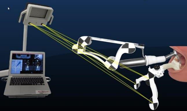 công nghệ implant nha khoa có bước phát triển vượt bậc