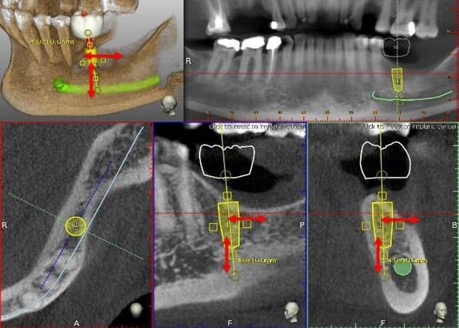 dễ dàng điều chỉnh kích thước trụ Implant phù hợp