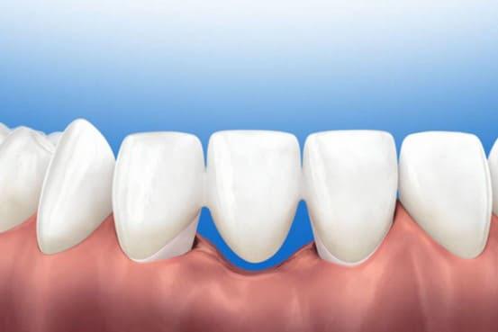 lắp cầu răng sứ